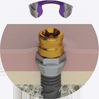 Implante mínimamente invasivo