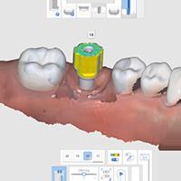 Alineación del pilar y el cuerpo de escaneo con inteligencia artificial